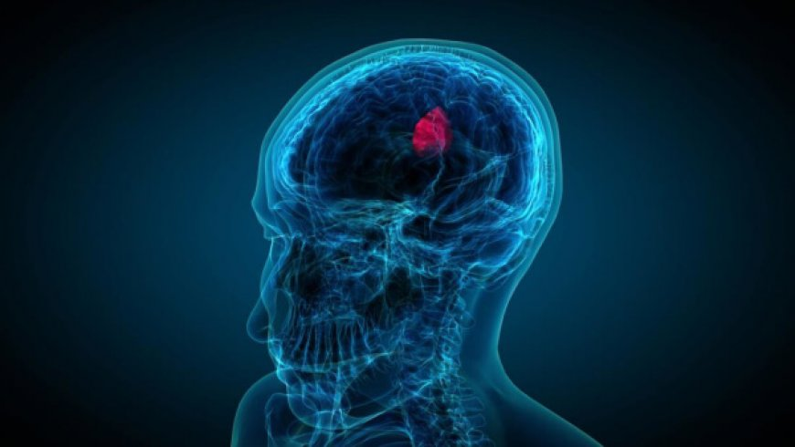 AIVITA发布免疫疗法的最新试验数据,脑癌患者的肿瘤生物标志物减少