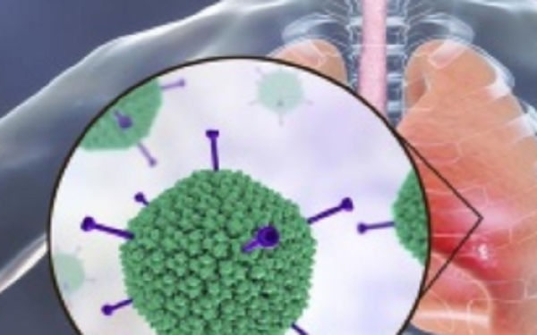 2分钟新冠病毒测试 美国COVID-19大流行 峰值