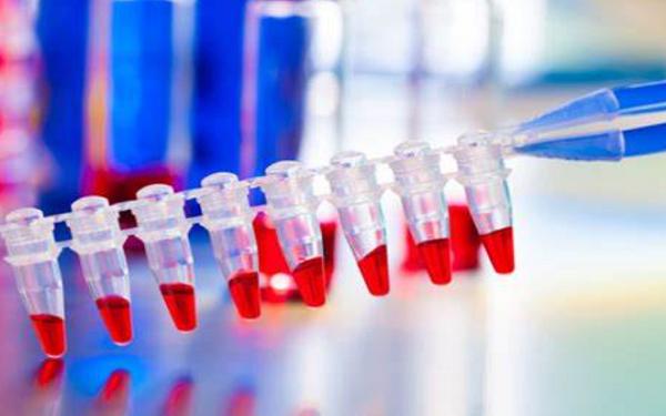 医疗保健精选——ADiTx Therapeutics展开COVID-19抗体分化测试,股价上涨;Relief Therapeutics进行 COVID-19先导药物吸入疗法测试