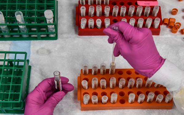 医疗保健精选——FDA将制定严格标准,疫苗或无法在美国大选前获批;Adial开始销售新冠试剂