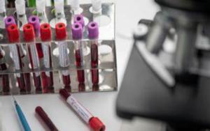 医疗保健精选——辉瑞和BioNTech新冠疫苗最终有效率达95%;FDA批准首个在家使用的新冠病毒试剂